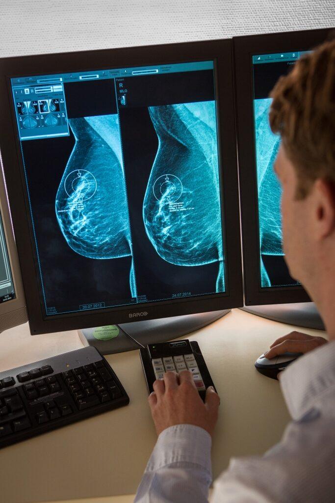 Brustkrebs-Vorsorge durch 3D-Mammographien an der Algarve zu Trickbetrug genutzt